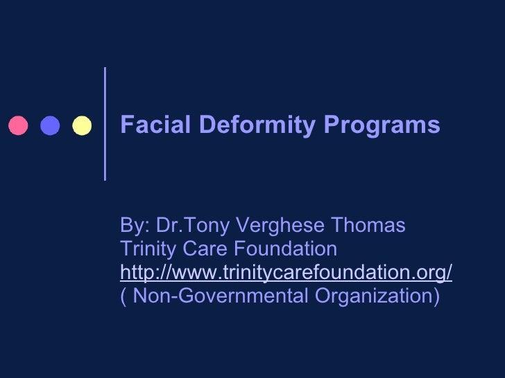 Facial Deformity Programs  By: Dr.Tony Verghese Thomas Trinity Care Foundation http://www.trinitycarefoundation.org/ ( Non...