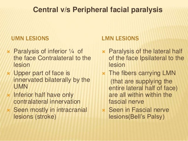 Central facial weakness and stroke
