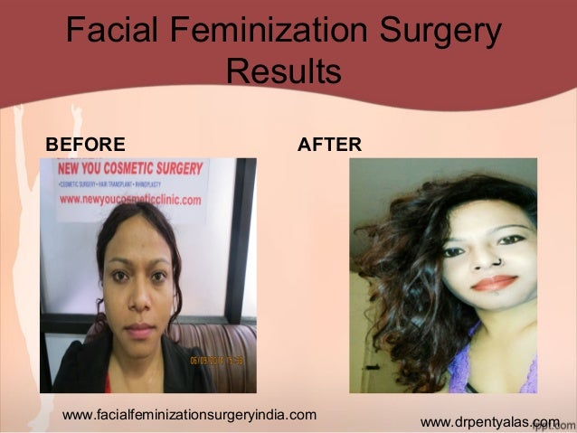 Facial Feminization Surgery Before After