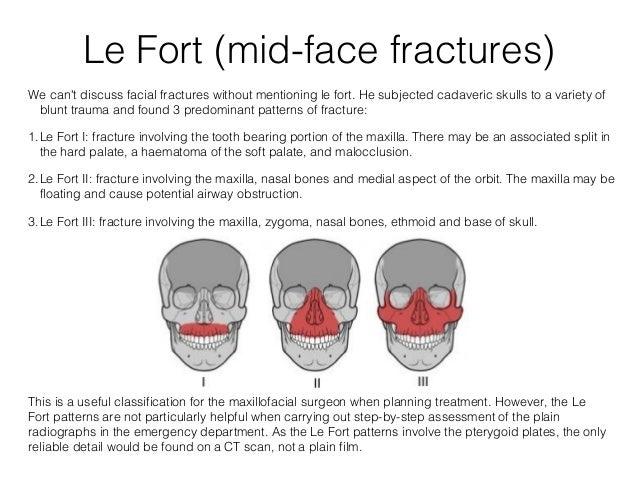 Facial Bone Fracture 47