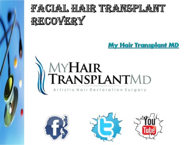 "One of the big questions posed by folks who undergo facial hair transplant surgery is ""how long before they can actively s..."