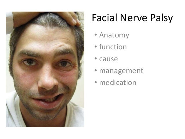 Facial Nerve Palsy• Anatomy• function• cause• management• medication