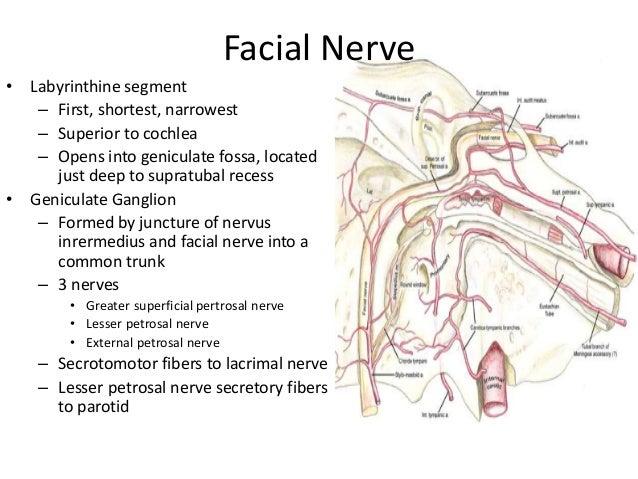 Facial nerve recess