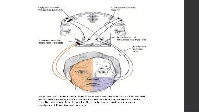 Central facial palsy