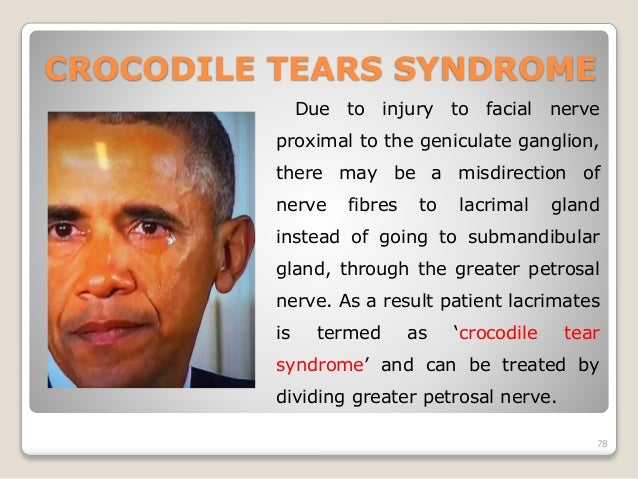 Crocodile tears facial