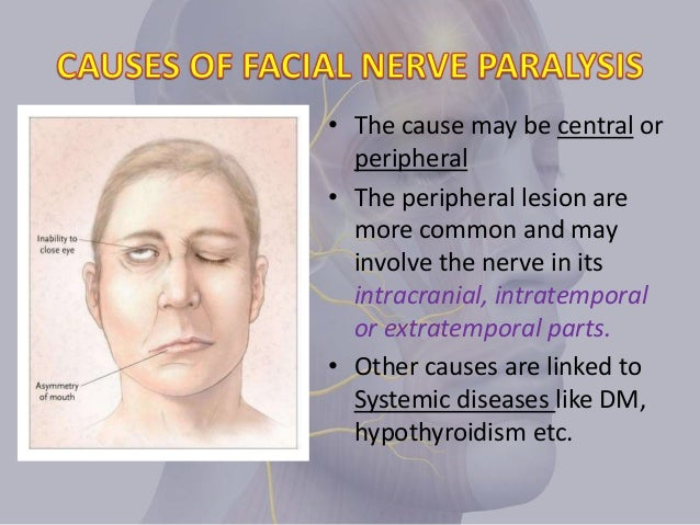 Acute facial nerve paralysis not simple