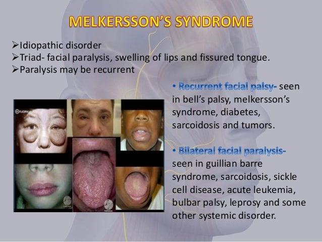 Idiopathic facial palsy