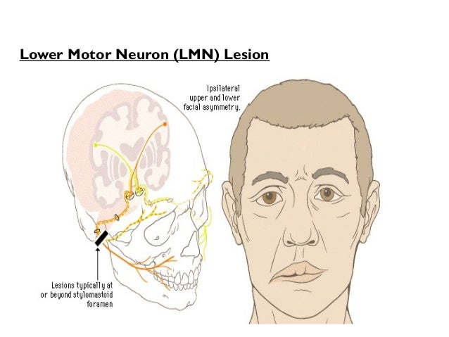 upper-motor-neuron-corticospinal-facial-changes-pussy-gifs-free