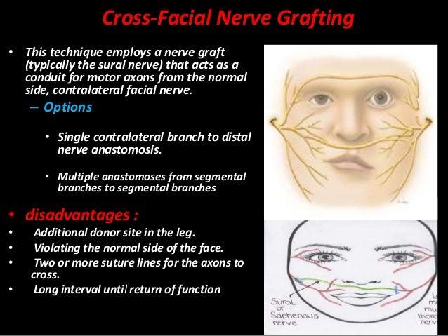 Cross facial nerve graft