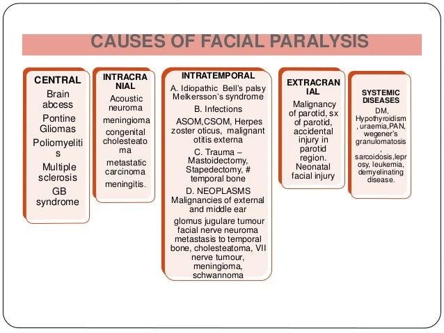Acute facial nerve paralysis curiously