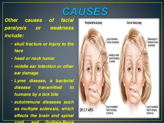 Autoimmune facial nerve palsy
