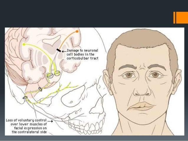 Toxic Causes:   Thalidomide    Tetanus    Diphtheria    Carbon Monoxide    Lead Intoxication