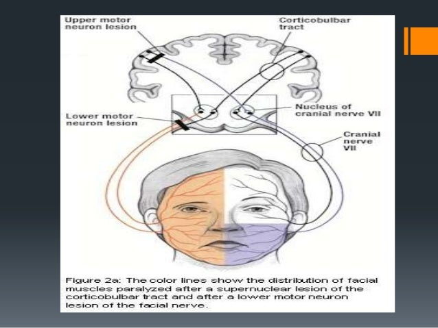 Idiopathic Causes:   Myasthenia Gravis    Guillain-Barre Syndrome    Sarcoidosis    Familial Bell's Palsy