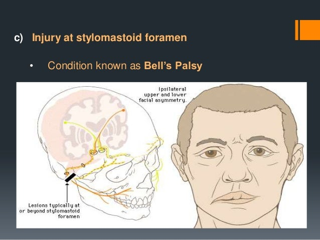 Topographic Diagnosis To determine the anatomical level of a peripheral lesion  Lacrimation  Stapedius reflex  Taste  Geni...