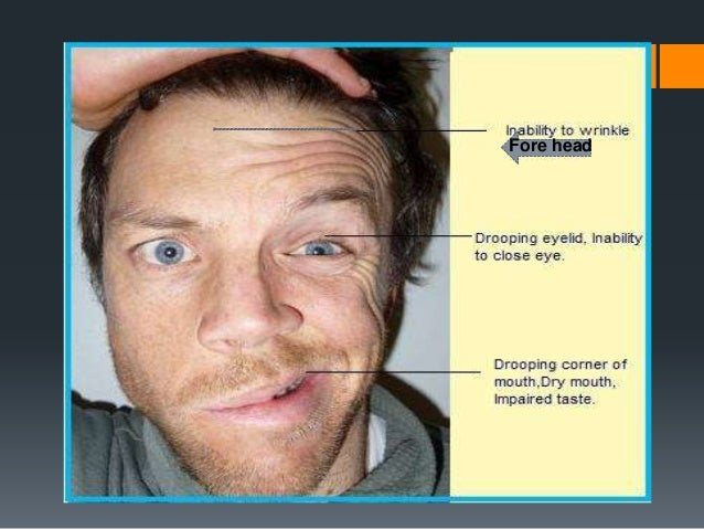 Electroneurography: ENoG  Indication: complete paralysis<3wks  Interpretation: < 90% degeneration: prognosis is good; > or...