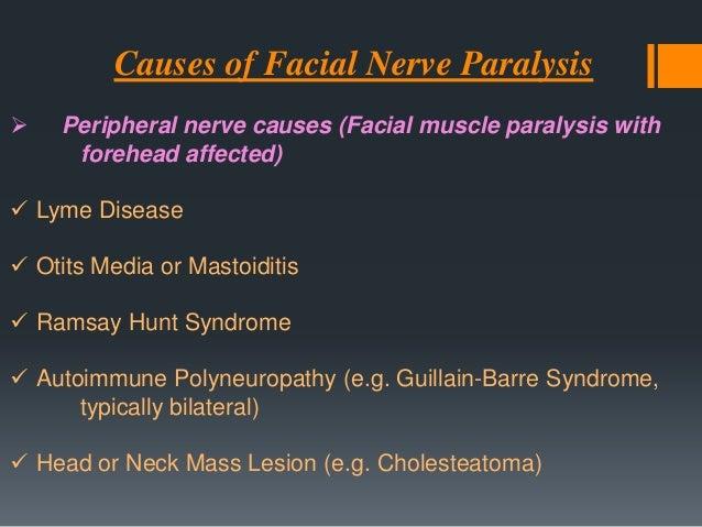 Cardiofacial Syndrome Unilateral facial paralysis involving only the lower lip and congenital heart disease  The facial p...