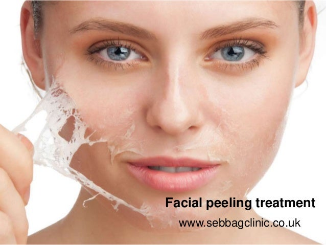 peeling treatment