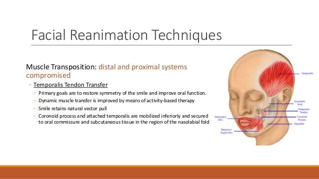 Facial Reanimation Procedure