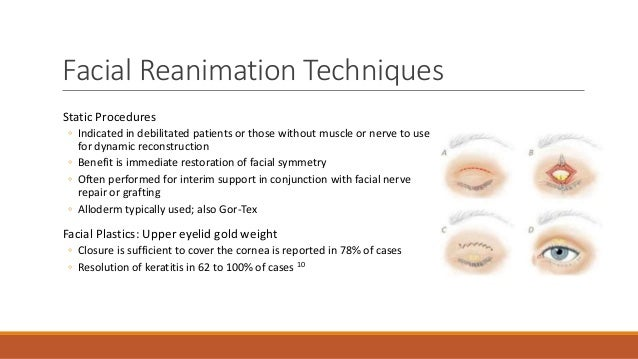 Facial Nerve Reanimation