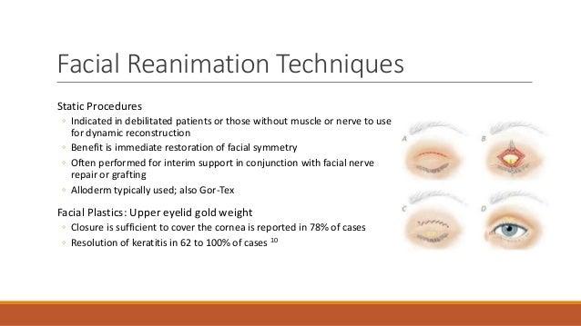 Facial Nerve Reanimation