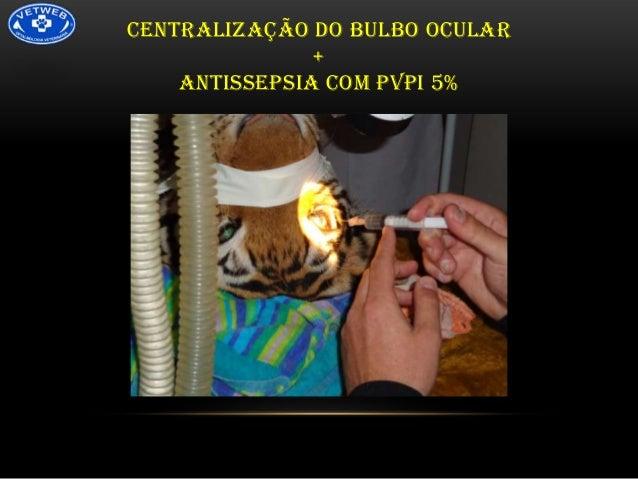 CENTRALIZAÇÃO DO BULBO OCULAR + ANTISSEPSIA COM PVPI 5%
