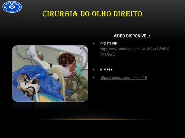 CIRURGIA DO OLHO DIREITO VIDEO DISPONÍVEL: •  YOUTUBE: http://www.youtube.com/watch?v=6WoHX FwbGwQ  •  VIMEO:  •  https://...