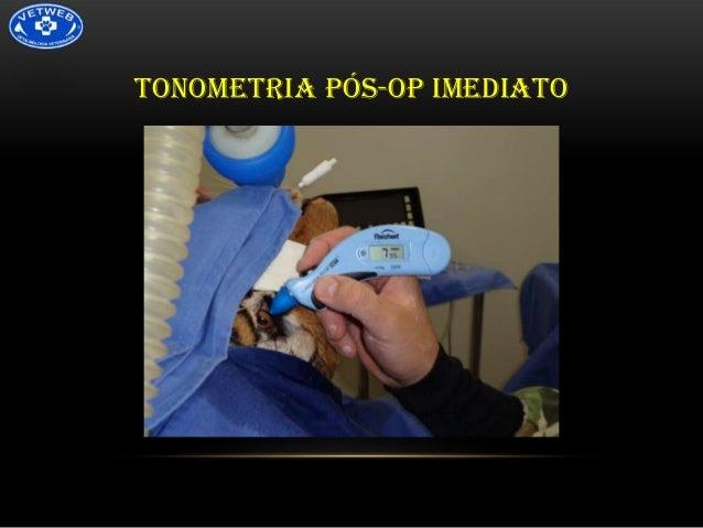 TONOMETRIA PÓS-OP IMEDIATO