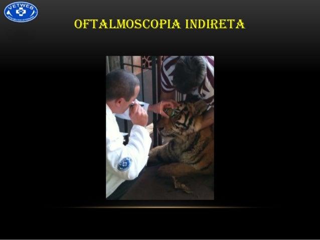 OFTALMOSCOPIA INDIRETA