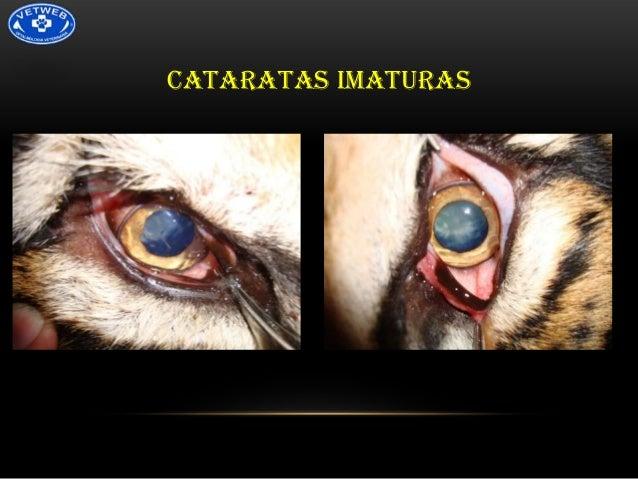 CATARATAS IMATURAS