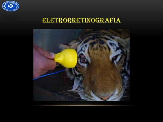 ELETRORRETINOGRAFIA
