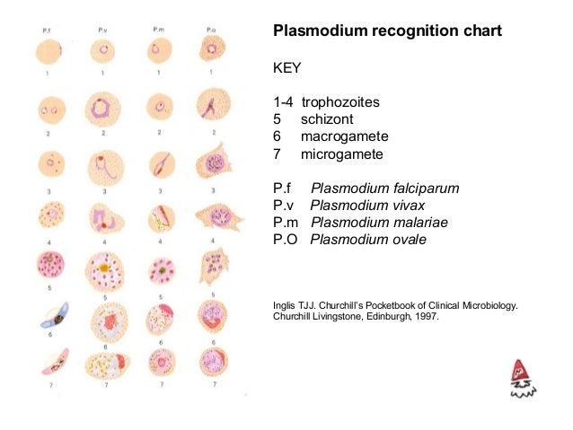 P. falciparum • trophozoite: accolé form, multiple per RBC, double chromatin dots, Maurer's dots, crenated RBC, high % RBC...