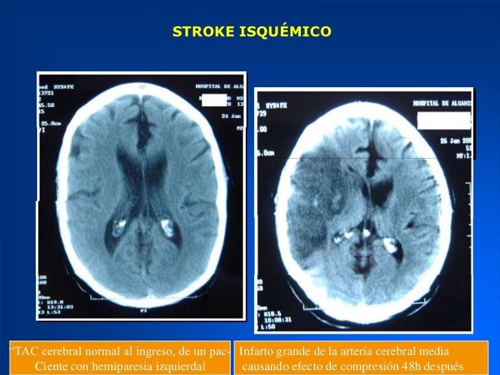 Resultado de imagen de stroke tac