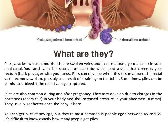 Swollen anus cures