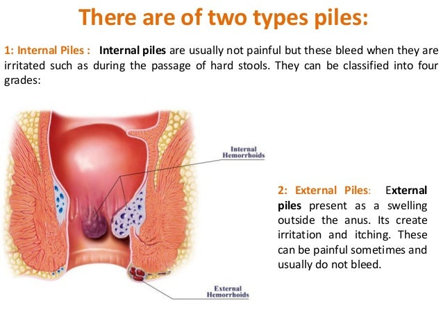 Facts To Know About Piles And The Scope Of Homeopathy