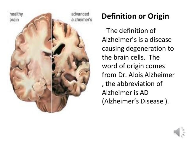 alzheimer s disease and its effects Alzheimer's disease is the  these drugs have cholinergic side-effects and  recommendations from the national institute on aging-alzheimer's association.