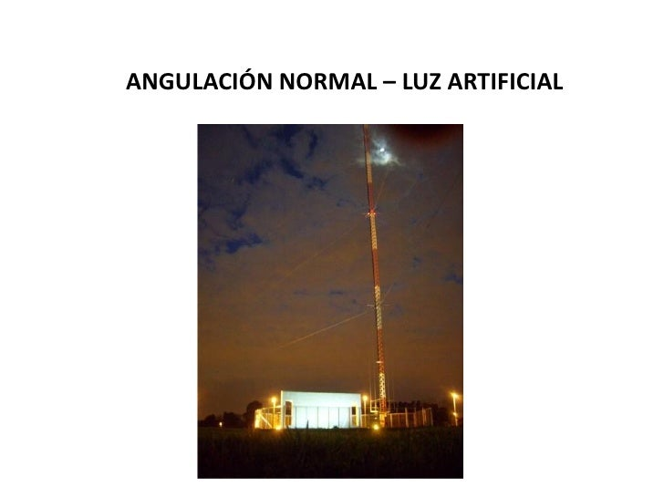 ANGULACIÓN NORMAL – LUZ ARTIFICIAL