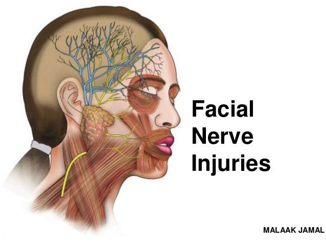 Conditions Facial nerve