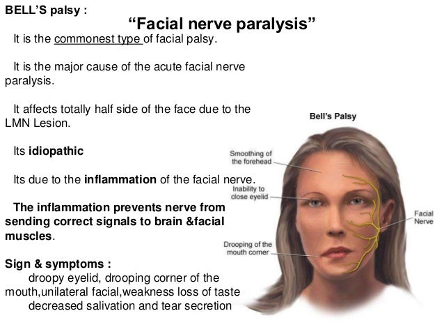 Facial nerve paralysis or palsy