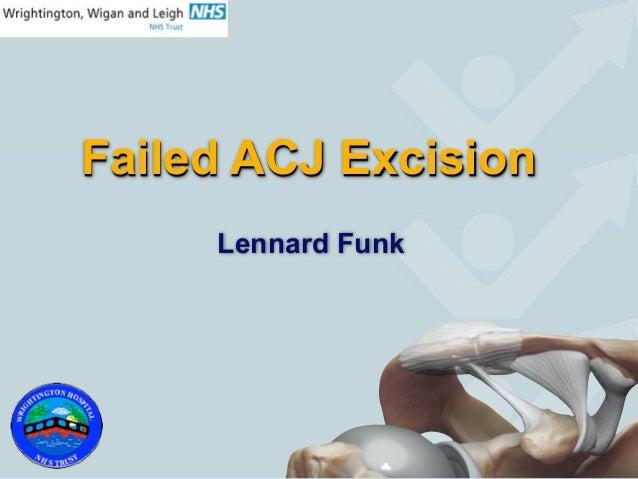 Failed ACJ Excision     Lennard Funk