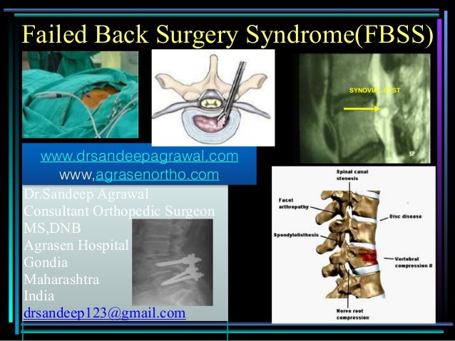 1 Dr.Sandeep Agrawal Consultant Orthopedic Surgeon MS,DNB Agrasen Hospital Gondia Maharashtra India drsandeep123@gmail.com...