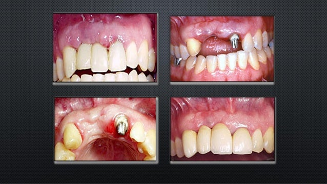 Failure of fixed prosthodontics