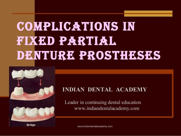 Failures in fpd / orthodontics courses in india