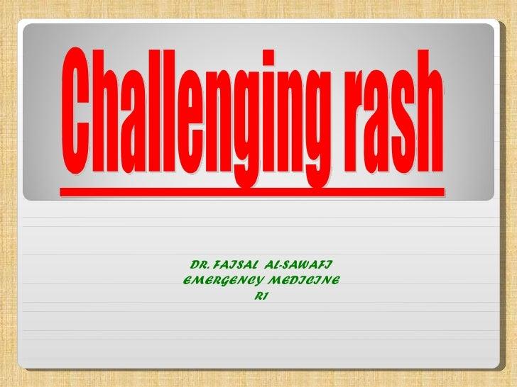 DR. FAISAL  AL-SAWAFI EMERGENCY MEDICINE R1