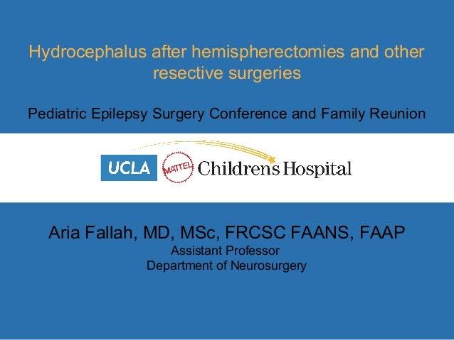 Aria Fallah, MD, MSc, FRCSC FAANS, FAAP Assistant Professor Department of Neurosurgery Hydrocephalus after hemispherectomi...