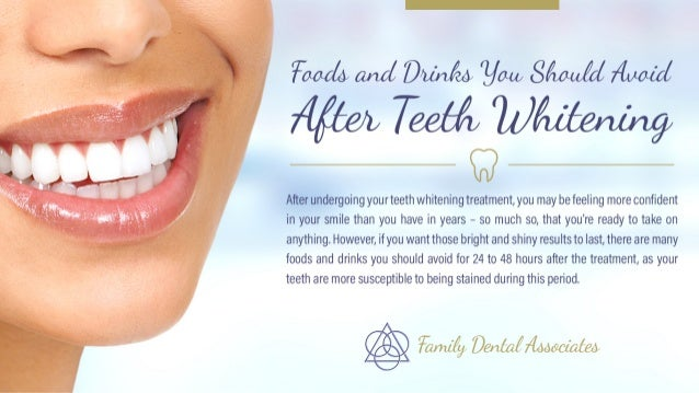 Foods and Drinks You Should Avoid After Teeth Whitening