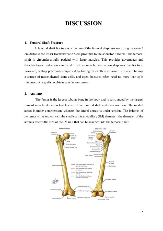 Case Report : closed fracture 1/3 middle left femur