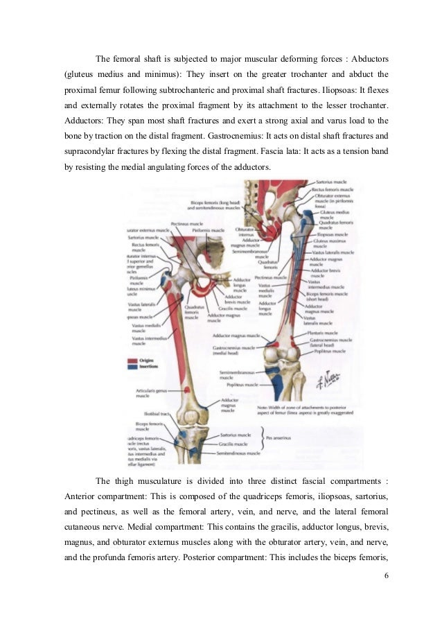 Case Report : closed fracture 1/3 middle left femur