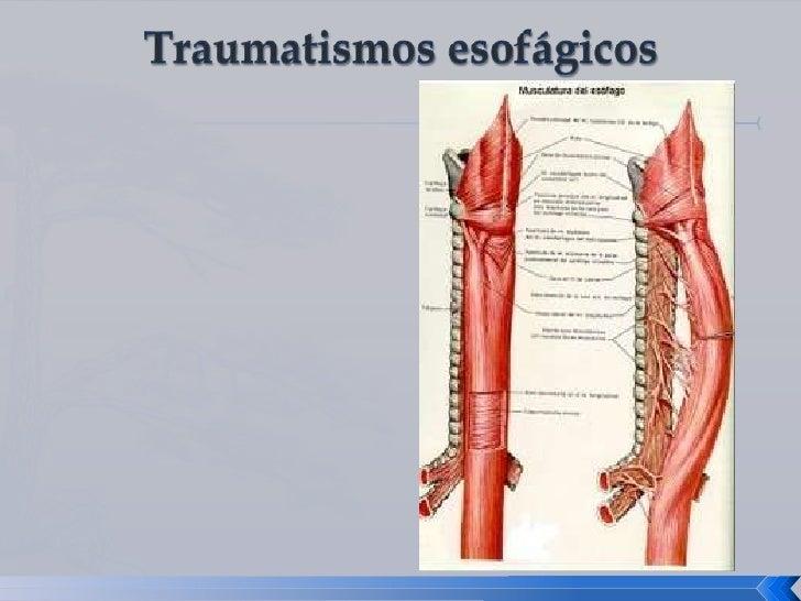 Dorable Anatomía De La Tráquea Y El Esófago Festooning - Anatomía de ...