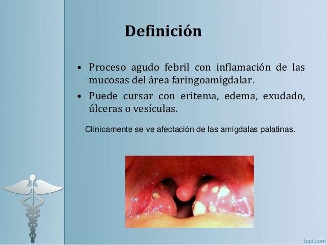 Faringoamigdalitis Slide 2