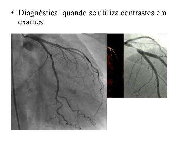 • Diagnóstica: quando se utiliza contrastes em exames.